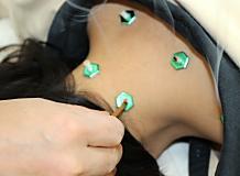 首の灸療法